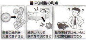 iPS細胞の利点