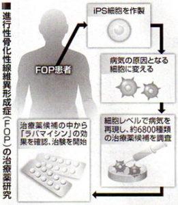 進行性骨化性線維異形成症